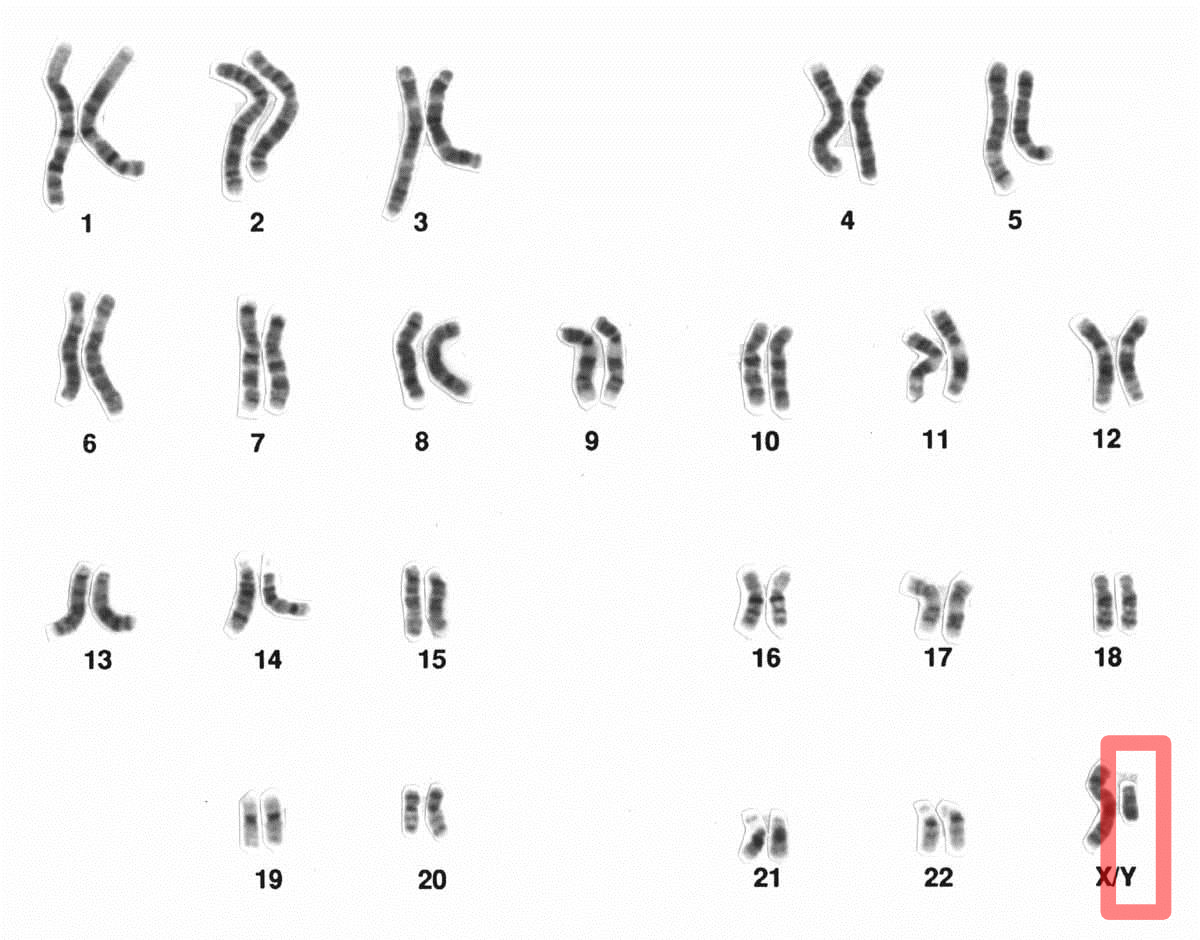 Human male karyotpe high resolution - Chromosome Y